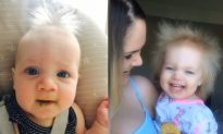 Adorable Toddler Has Uncombable Hair Syndrome and Is Nicknamed 'Einstein 2' by Her Parents